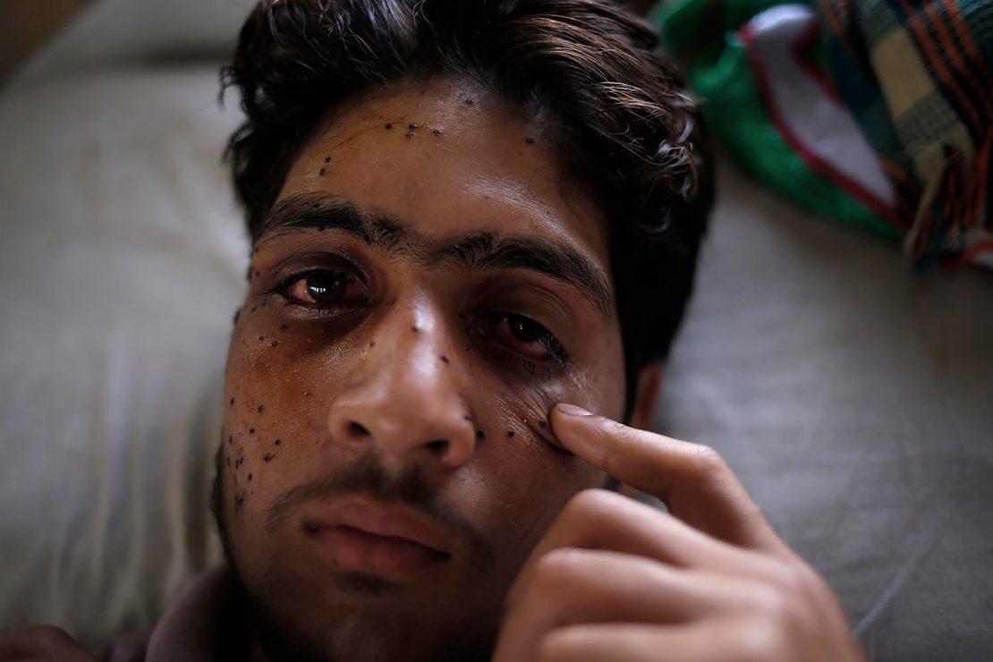 Los ojos perdidos de Cachemira